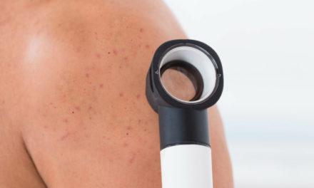 Manchas na pele: conheça as doenças de pele e os cuidados médicos necessários